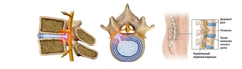 Ревматоидный артрит лечение в китае отзывы