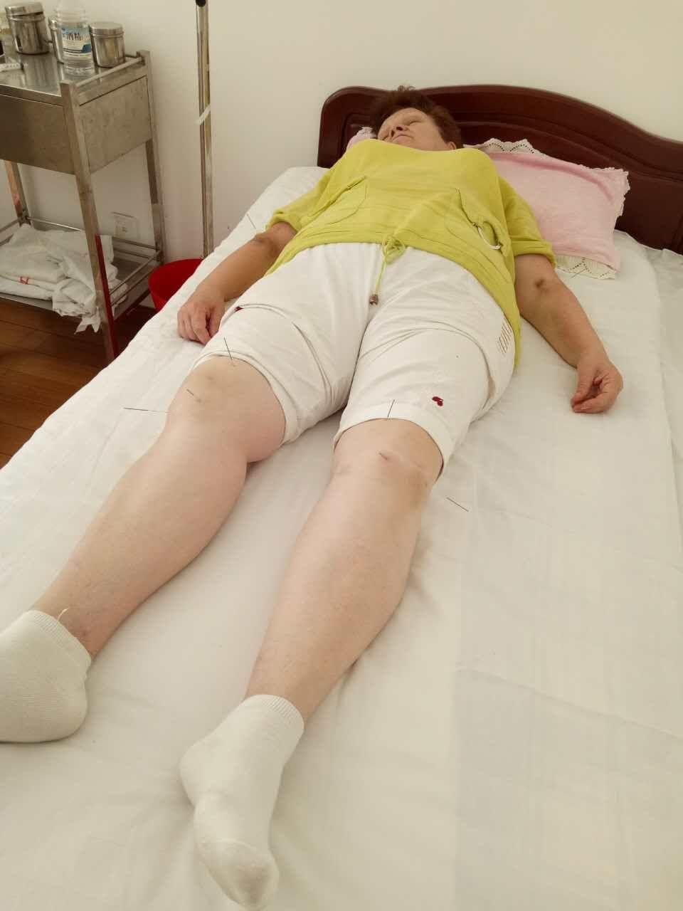 Лечение ревматологии в Китае